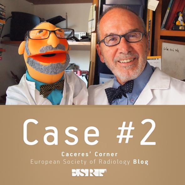 Caceres Corner Case 02