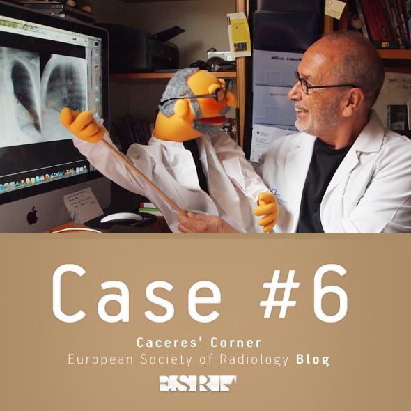 Caceres Corner Case 6