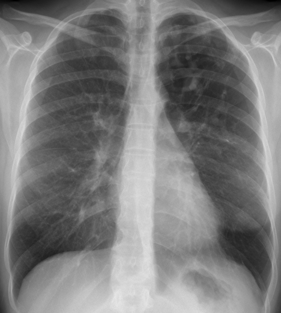 40-year-old woman, PA chest