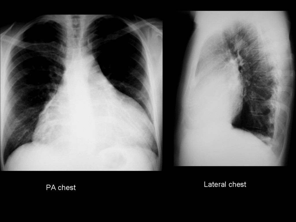 29-year-old male, heavy smoker