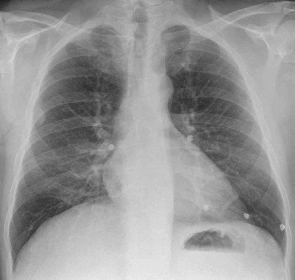 38-year-old man, PA chest