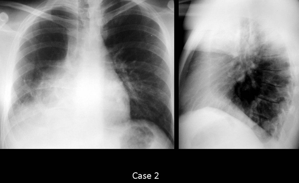 Case 2: does the patient have middle lobe disease?