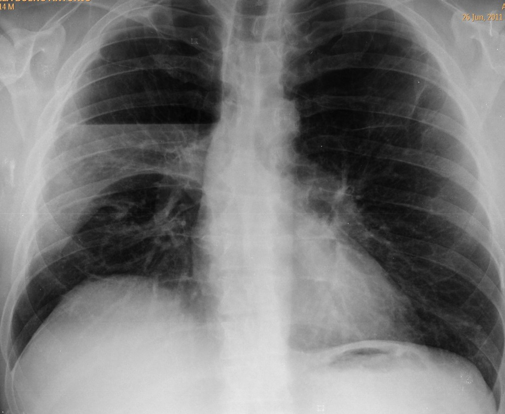 46-year-old man, PA chest