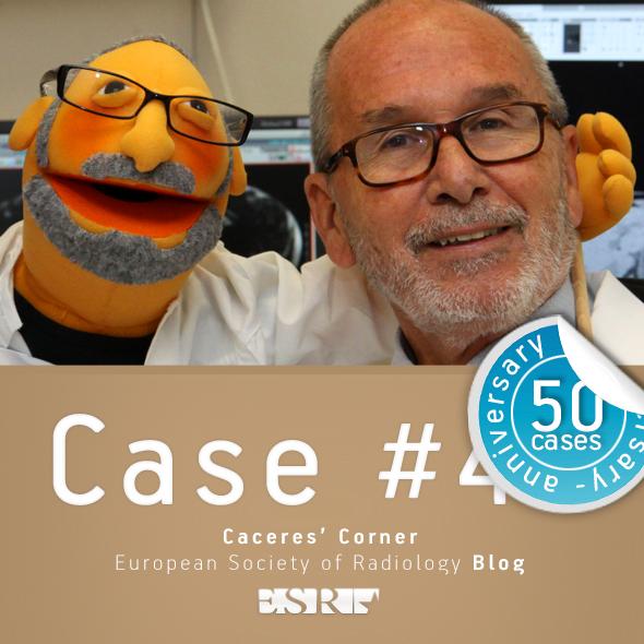 ESR_2012_Blog-CaceresCorner-590-CASE50