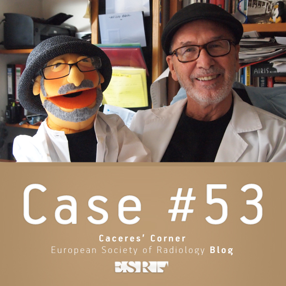ESR_2012_Blog-CaceresCorner-590-CASE53