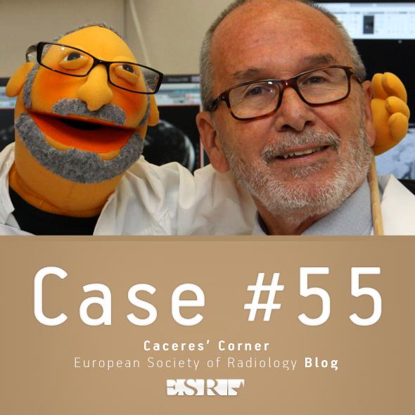 ESR_2012_Blog-CaceresCorner-590-CASE55