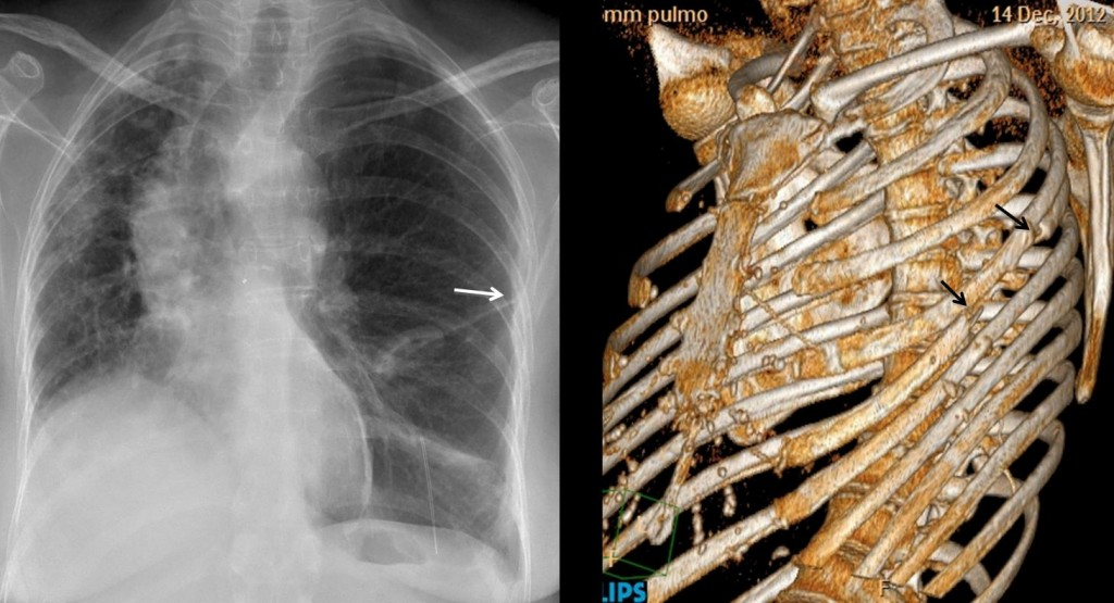 Fig. 2. Left lung transplant. Note post-surgical changes in the left 5th rib (arrows)