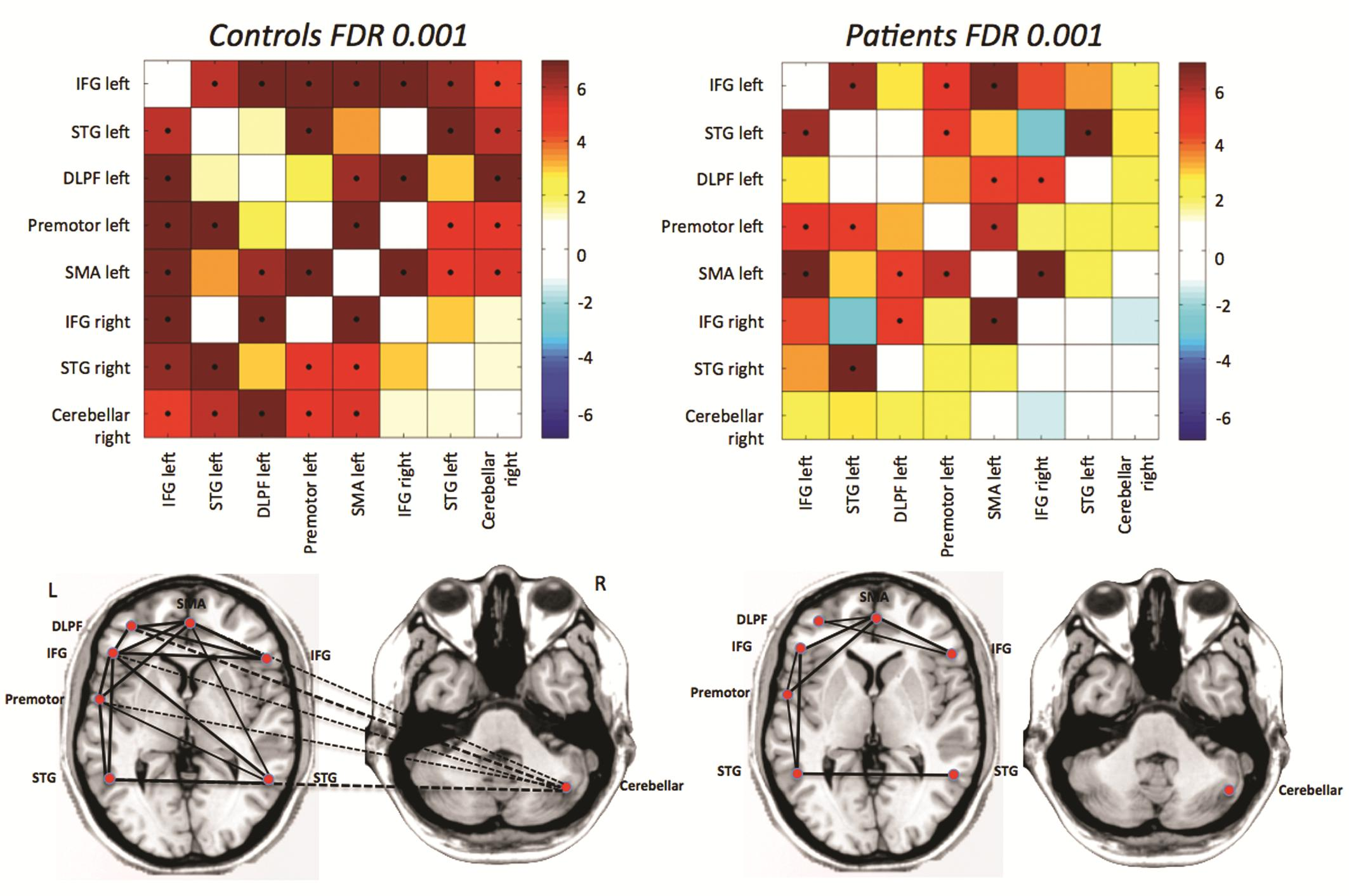 Fig. 1: Differences in functional connectivity from rfMRI between autistic patients and age- and gender matched controls: the major disconnection is between the cerebellum and frontal language areas.