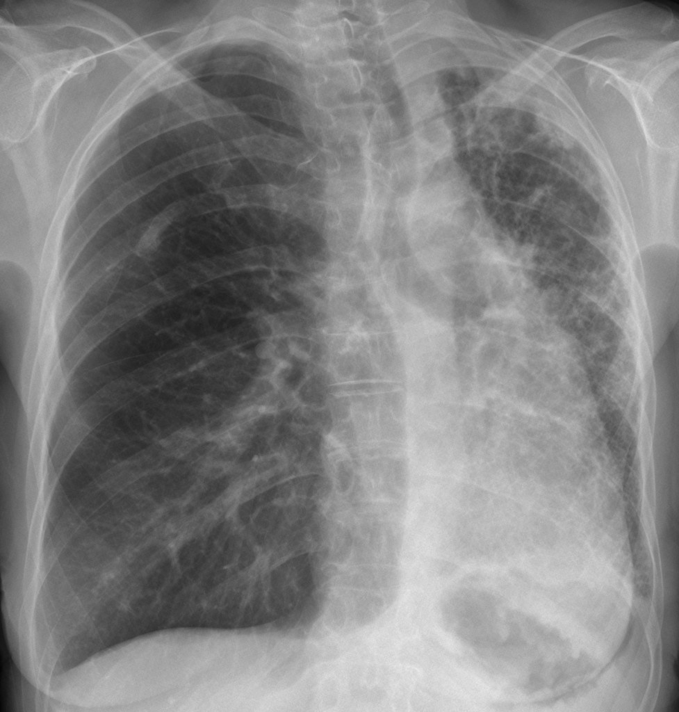 PA chest, 48-year-old woman