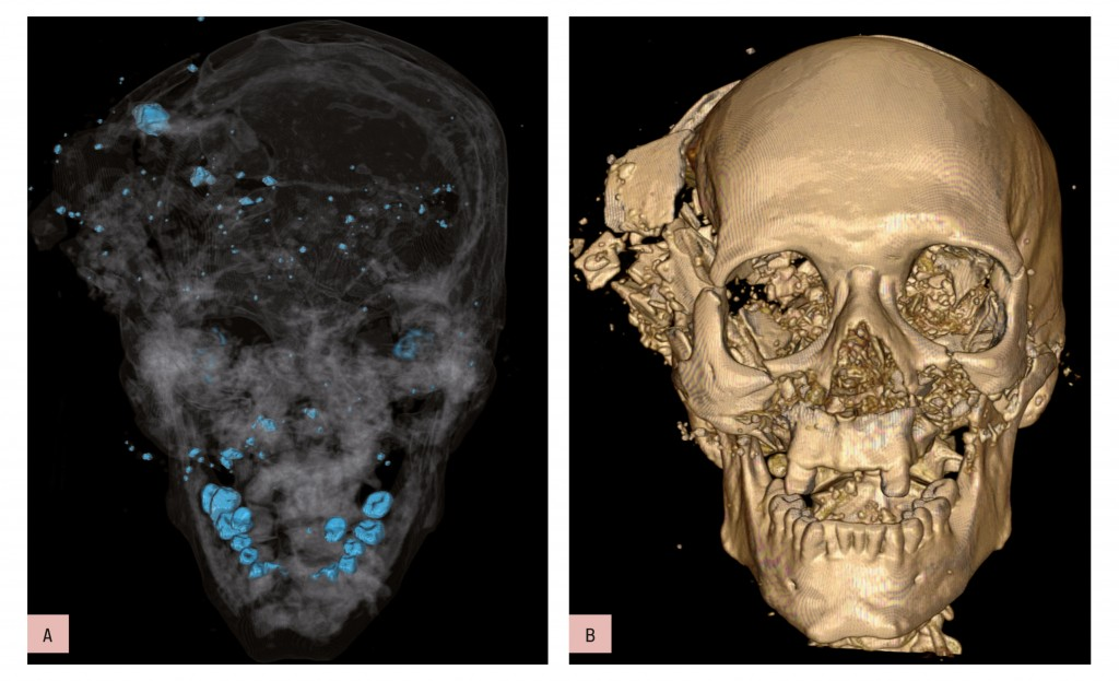 Bone and metal maximum intensity projection (MIP) reconstruction (a) and volume-rendered (VR) 3D-CT reconstruction (b). Homicidal death: characteristic bony and metallic fragments on the exit side of the skull, where the bullet caused a large loss of brain, leading to shattering of the skull.