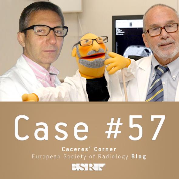 ESR_2012_Blog-CaceresCorner-590-CASE572