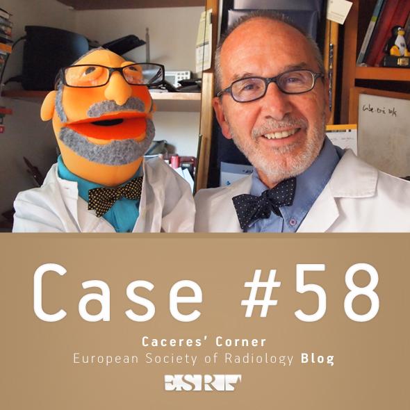 ESR_2012_Blog-CaceresCorner-590-CASE58