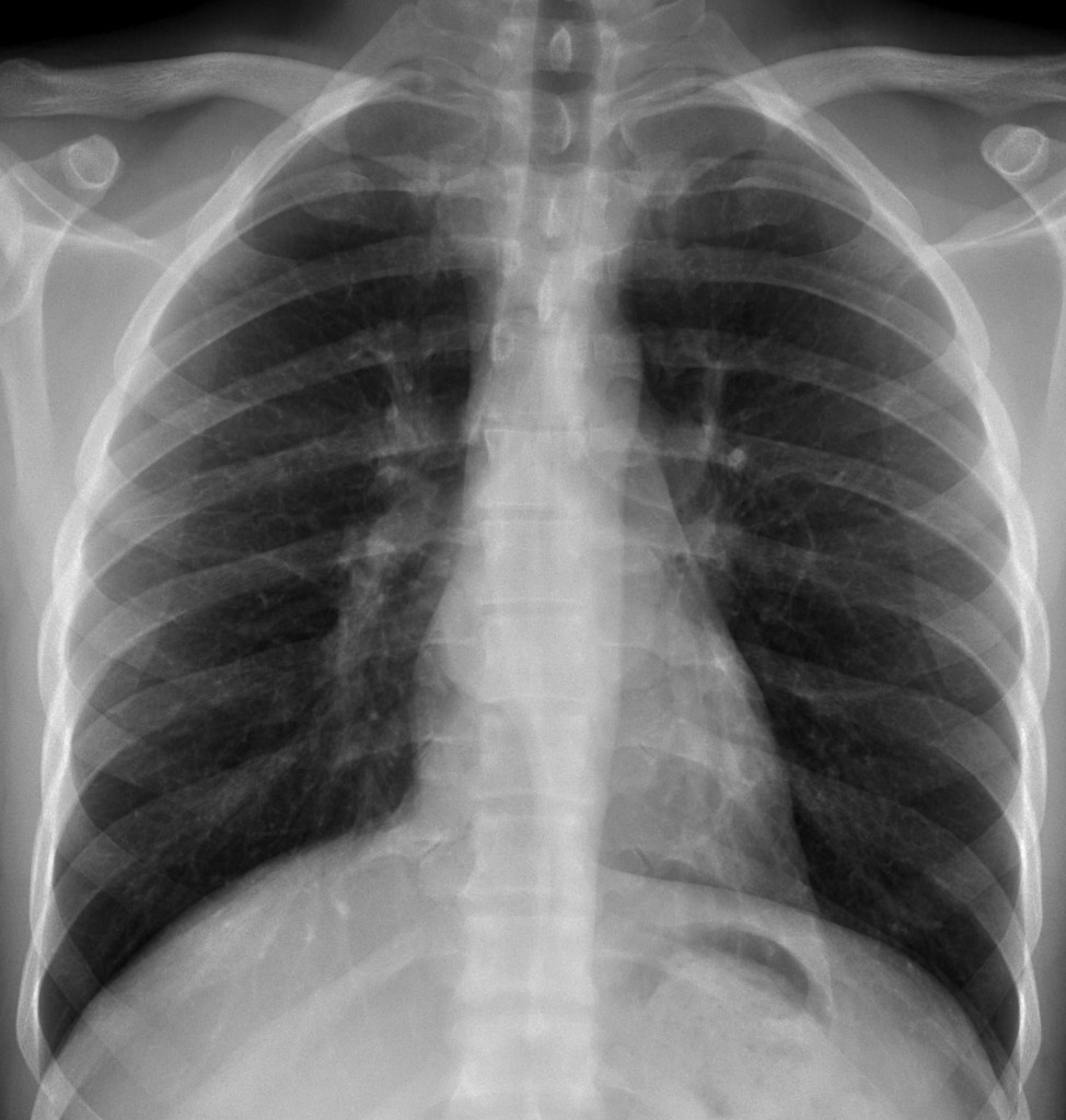29-year-old, PA chest