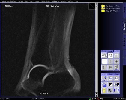 Sodium image of the ankle joint in the sagittal plane shows intact cartilage with high sodium SNR and a thickened Achilles tendon in the distal portion with increased sodium SNR which corresponds to an increased GAG content, which in the Achilles tendon represents chronic Achillotendinitis. (Provided by Prof. Siegfried Trattnig and the MR Centre of Excellence)