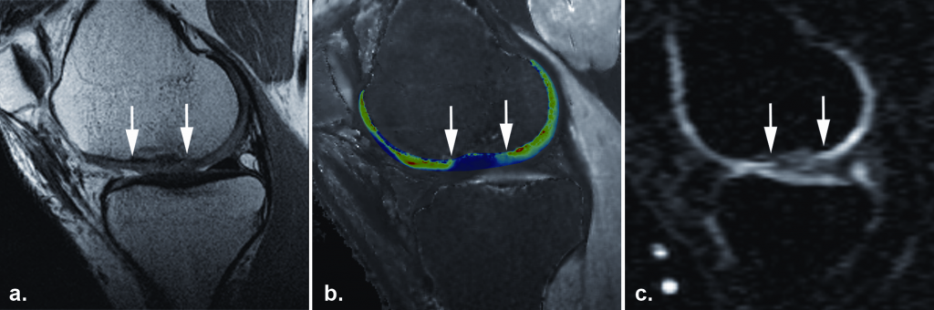The sodium image of this patient (c) one year after autologous cartilage transplantation in the knee joint shows a low sodium SNR (the white arrows mark the border of the transplant), which corresponds to decreased GAG content of in the repaired tissue. This finding is confirmed by dGEMRIC another GAG specific technique (b). However the morphological image (a) with proton-density weighted FSE shows a good outcome with a good filling of the defect and a good integration of the repaired tissue. Copyright Radiology (with permission)