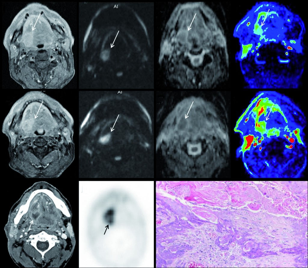 Multiparametric MRI for early treatment prediction of chemoradiation in oropharyngeal cancer:  Upper row is pre-treatment MRI of right base of tongue cancer (a=contrast enhanced T1 as anatomical correlate; b=native b1000 diffusion-weighted image; c= ADC-map; d=perfusion-map of IUAC). Middle row is 2 weeks during chemoradiation: same imaging sets, tumour volume will not help. No significant change in b1000, ADC nor perfusion-MRI indicate non-response and thus high risk of tumour relapse after end of treatment.  Tumour relapse at PET-CT 8 months after end of treatment, proven by histology (k). (Provided by Professor Vincent Vandecaveye)