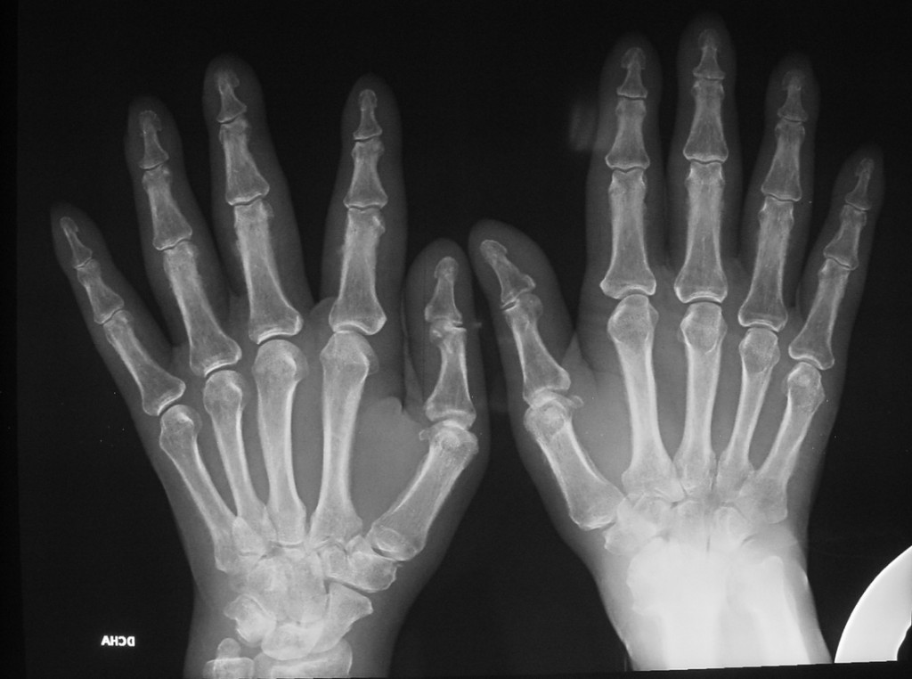 59-year-old male with pain in the joints (AP view)