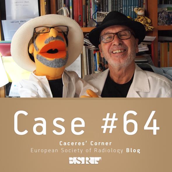 ESR_2012_Blog-CaceresCorner-590-CASE64