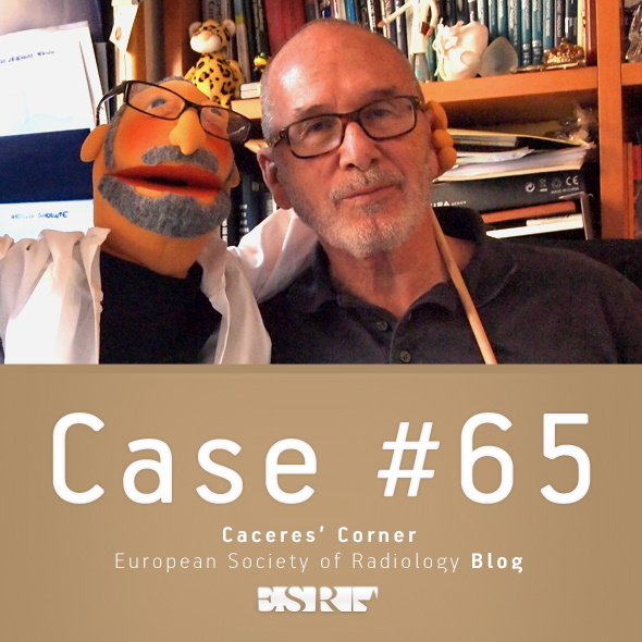 ESR_2012_Blog-CaceresCorner-590-CASE65