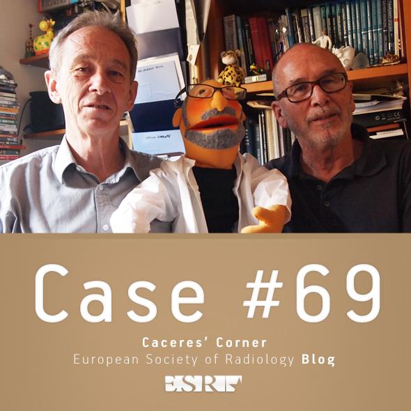 ESR_2011_Blog-CaceresCorner-590-CASE69neu