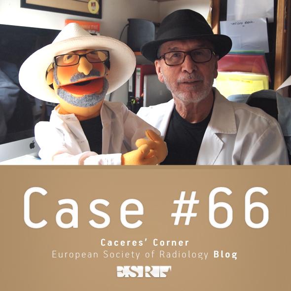 ESR_2012_Blog-CaceresCorner-590-CASE66