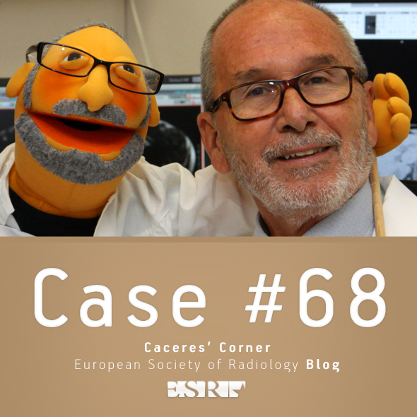 ESR_2012_Blog-CaceresCorner-590-CASE68