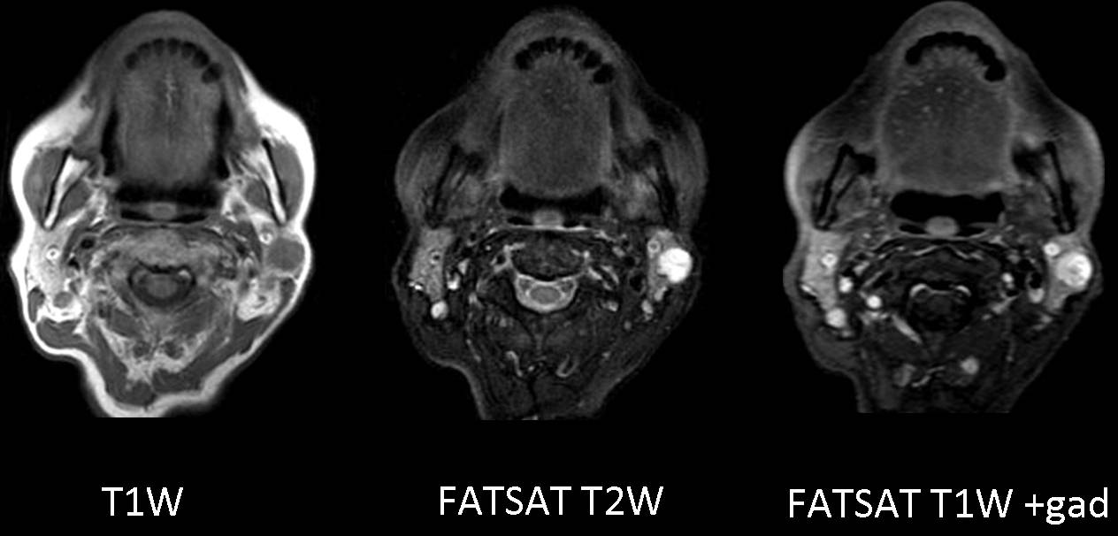Clinical findings: a 65-year-old asymptomatic woman with left parotid mass