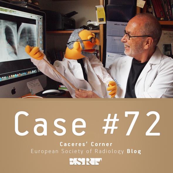 ESR_2011_Blog-CaceresCorner-590-CASE72