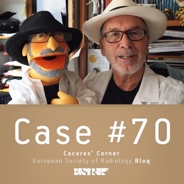 ESR_2012_Blog-CaceresCorner-590-CASE70