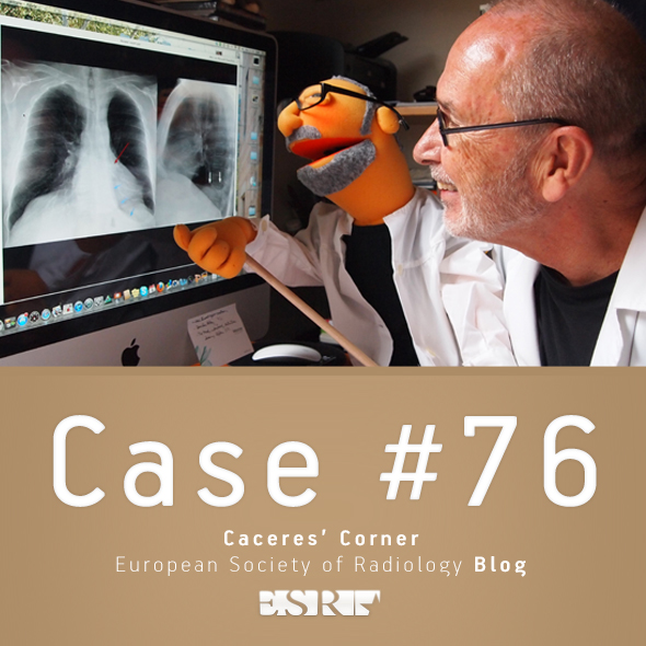 ESR_2012_Blog-CaceresCorner-590-CASE76