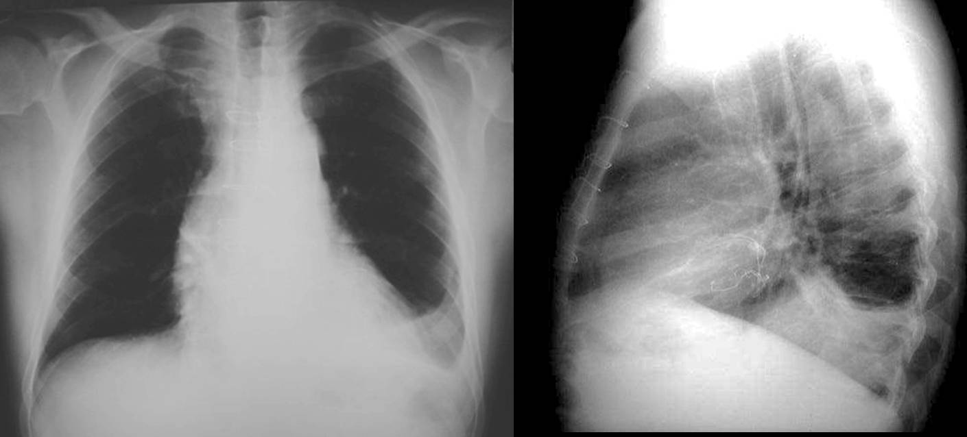 45-year-old man with fever one week after coronary surgery