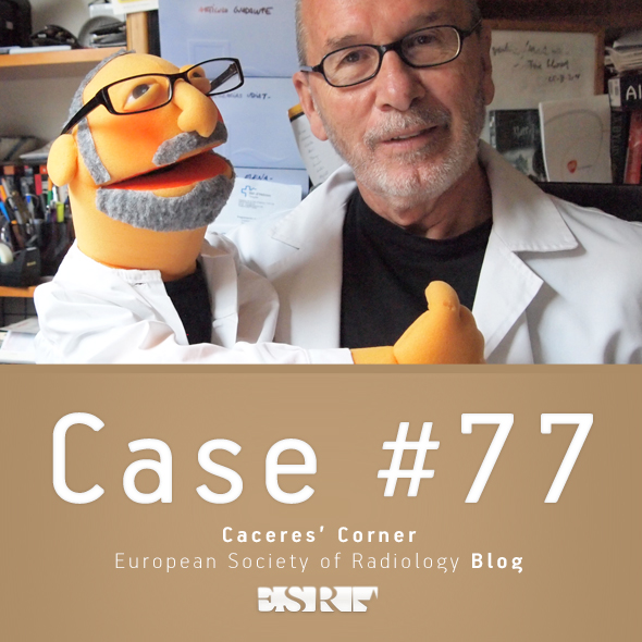 ESR_2012_Blog-CaceresCorner-590-CASE77