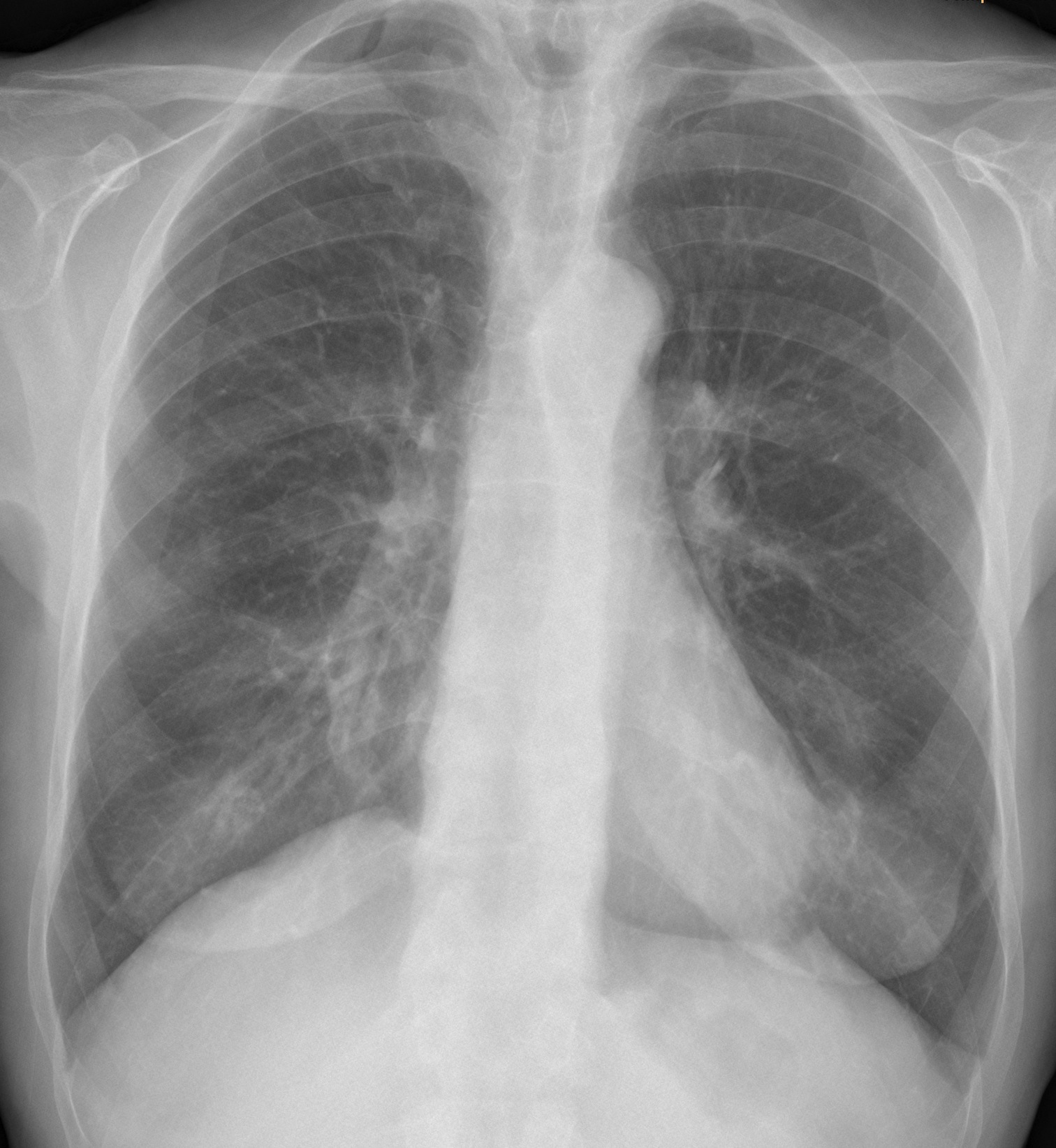 64-year-old female, PA chest