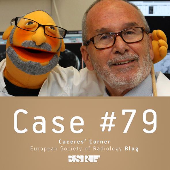 ESR_2012_Blog-CaceresCorner-590-CASE79