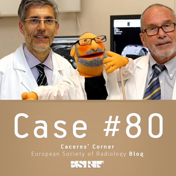 ESR_2012_Blog-CaceresCorner-590-CASE80