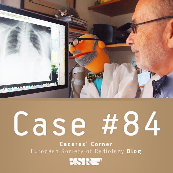 ESR_2012_Blog-CaceresCorner-590-CASE84