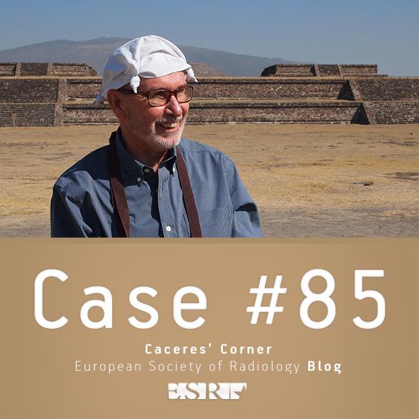 ESR_2012_Blog-CaceresCorner-590-CASE85
