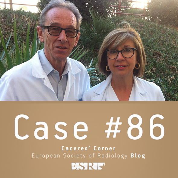 ESR_2012_Blog-CaceresCorner-590-CASE86