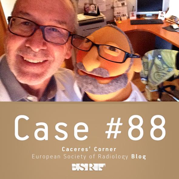 ESR_2012_Blog-CaceresCorner-590-CASE88_2