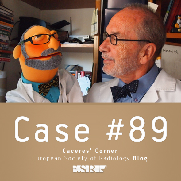 ESR_2012_Blog-CaceresCorner-590-CASE89