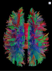 White matter fibre pathways of the brain as depicted with MR tractography. (Provided by Patric Hagmann, CHUV-UNIL, Lausanne, Switzerland)