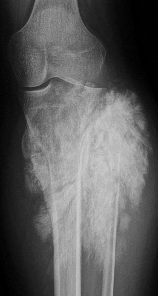 Conventional x-ray of a tumour in the knee (Image provided by Prof. Koenraad Verstraete)