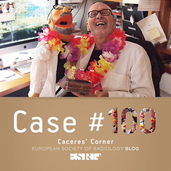ESR_2014_Blog-CaceresCorner_CASE100