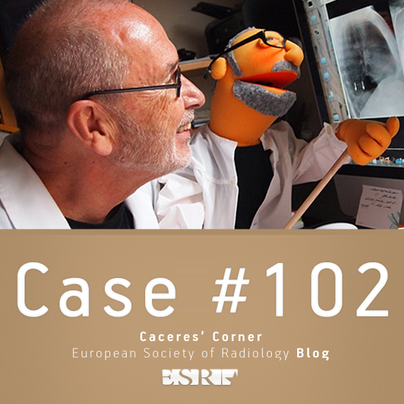 ESR_2012_Blog-CaceresCorner-590-CASE5102