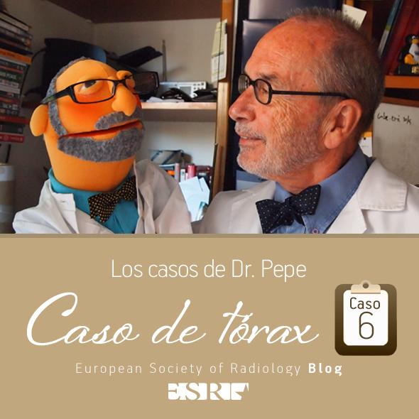 ESP_torax_case_6