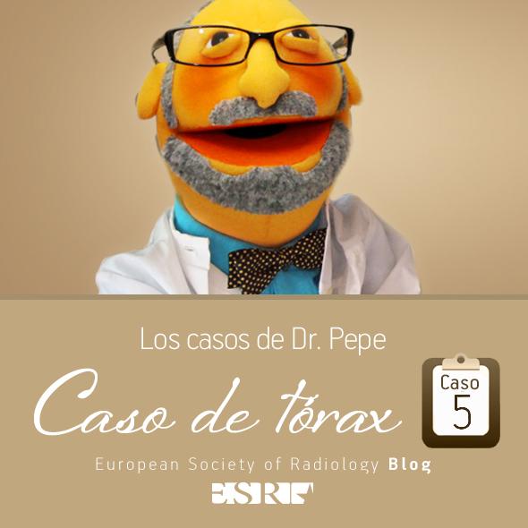 ESP_torax_case_final_5