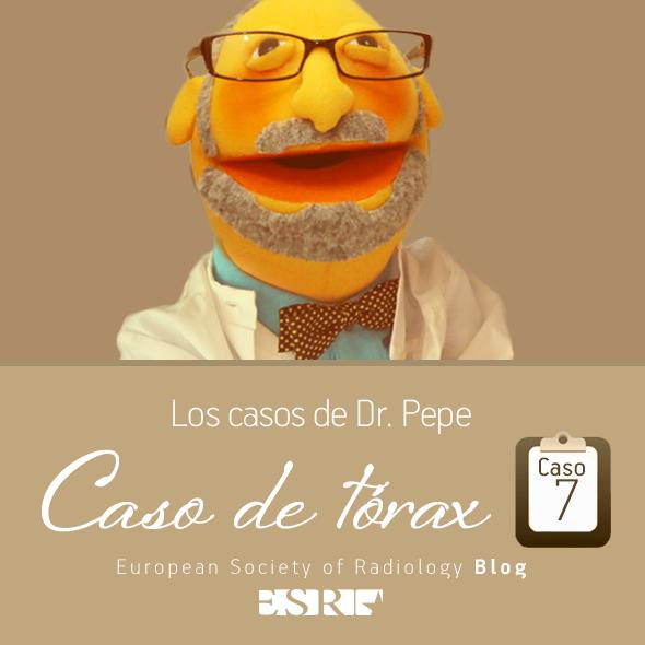 ESP_torax_case_final_caso7