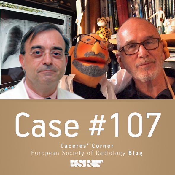 ESR_2015_Blog-CaceresCorner-case107