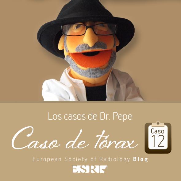 ESP_torax_case_final_caso12
