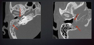 Mass in the middle ear causing conductive hearing loss. Based on imaging findings it was diagnosed as glomus jugulotympanicum.